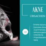 Ursachen von Akne